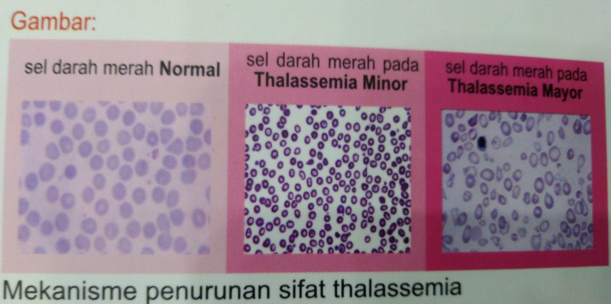 Perbedaan antara darah normal dengan penderita talasemia