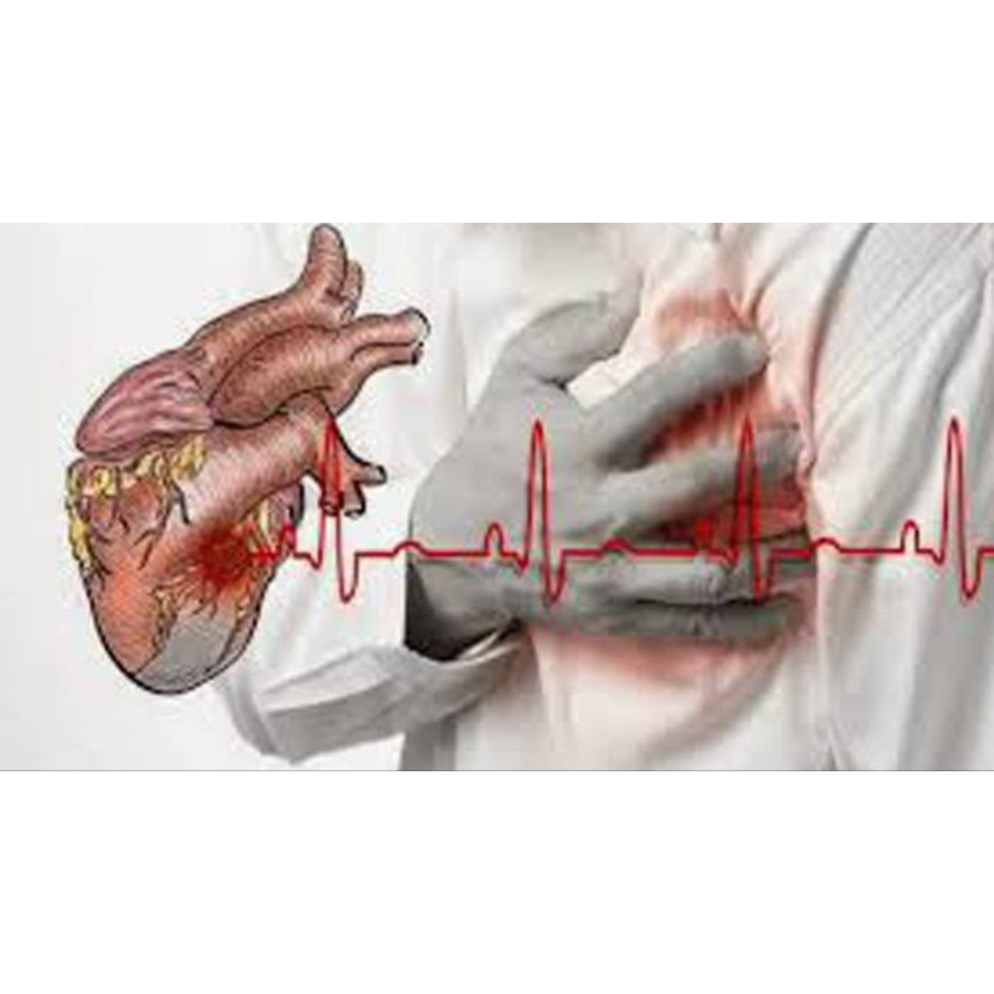 Penyakit Jantung sebagai salah satu penyakit tidak menular